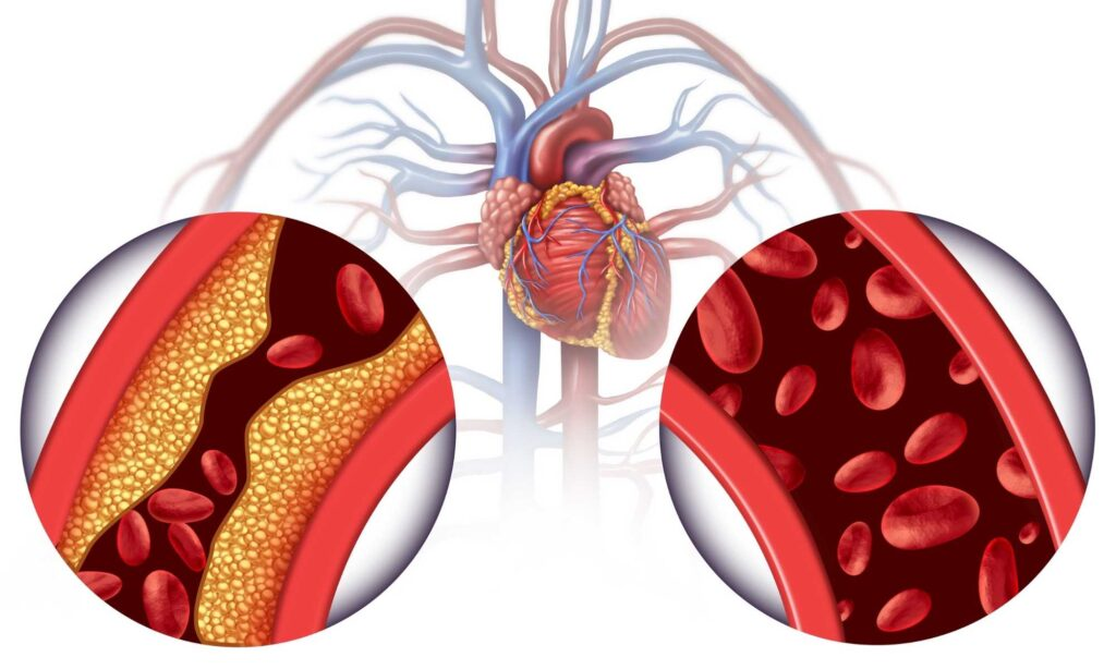Dieta Cholesterol